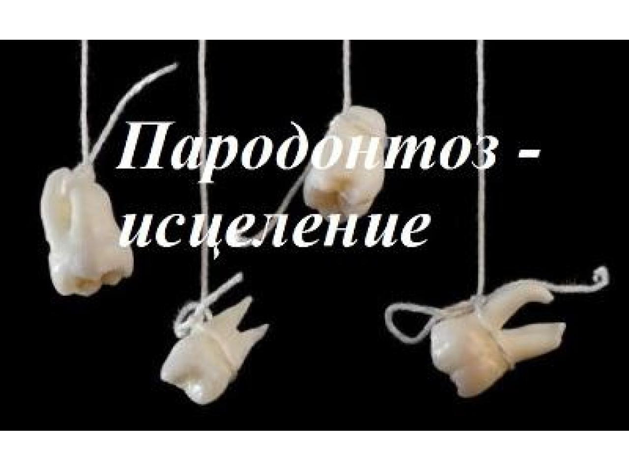 Пародонтоз - уникальный метод исцеления - 1