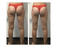 Аппаратная косметология лица и тела/ Восковая эпиляция - Image 2